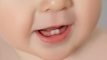 夜の授乳で虫歯が心配