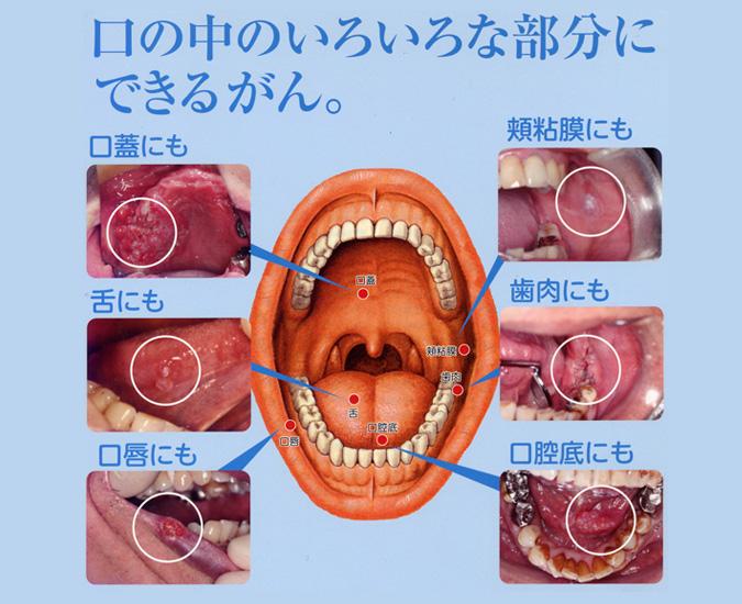 口腔癌とは