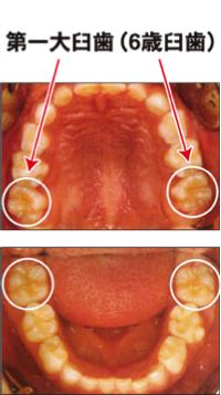 6歳臼歯の健康