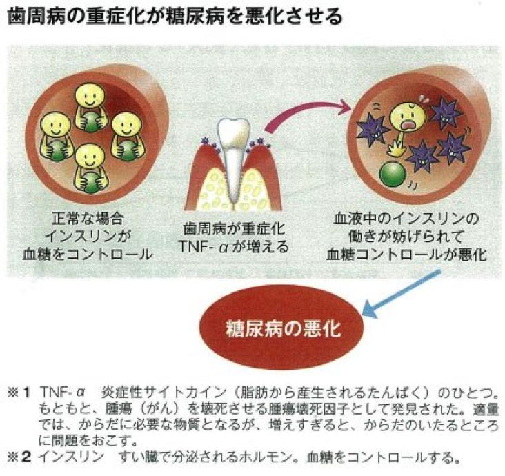 歯周病は糖尿病の合併症のひとつ