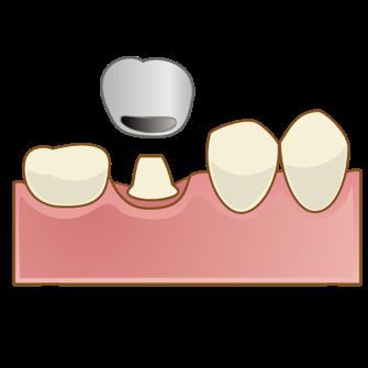 銀歯と白い詰め物の違いって?