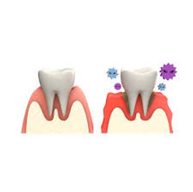 歯周病予防には小腸ケアが効果的!?