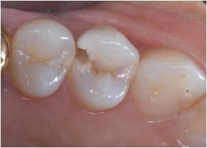 子供の歯と歯の間の虫歯を防ぐには?