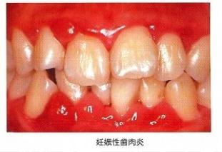 妊婦さんの歯の健康