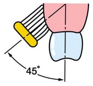 歯肉炎歯磨き1
