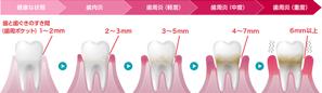 糖尿病と歯の健康
