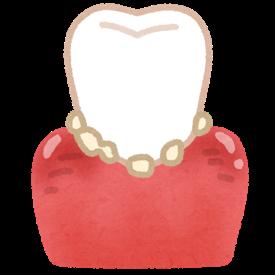 歯石について知っていますか?