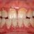 不健康な歯茎と健康な歯茎の違い